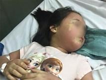 Thực hư vụ bé gái 5 tuổi phải nhập viện Bạch Mai khẩn cấp nghi do ngộ độc trà sữa