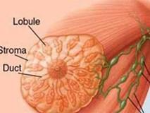 Bác sĩ BV K khuyến cáo: Phát hiện trên ngực có khối u này, chị em nên bình tĩnh xử trí