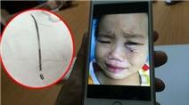 3 lần phẫu thuật tìm cây kim gãy trong mắt bé trai 4 tuổi