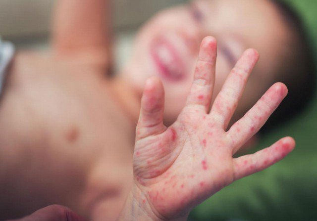 Hàng nghìn trẻ mắc tay chân miệng, nhiều ca biến chứng nặng lên não-1