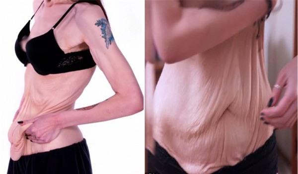 Hậu giảm cân, cô gái bị trầm cảm nặng vì làn da chảy xệ - Ảnh 3.