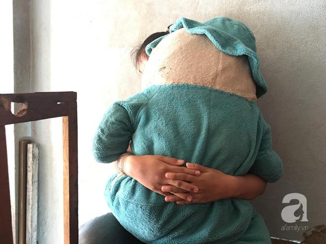 Vụ bé gái 11 tuổi câm điếc bị xe ôm hiếp dâm: Tìm thấy ADN nghi phạm trong vùng kín của bé gái-3