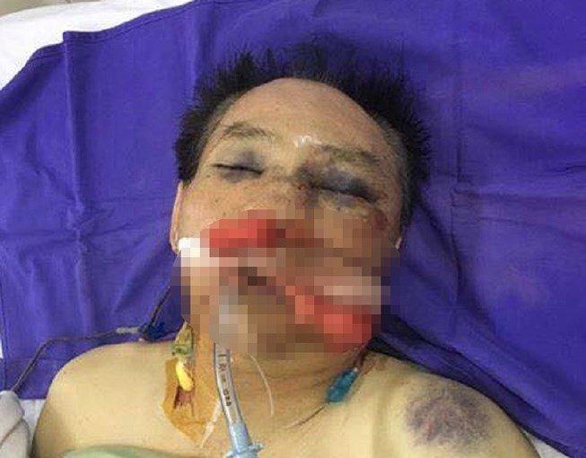 Nguyên đại tá công an đánh vợ chồng anh trai dập phổi-1