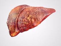 6 dấu hiệu cảnh báo gan đang yếu đi từng ngày: Bạn nên biết trước khi quá muộn