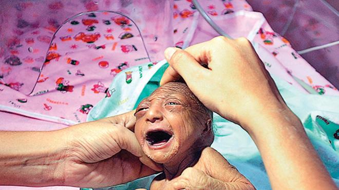 Bố mẹ nhẫn tâm bỏ đói đến chết con gái 2 tuần tuổi vì con có ngoại hình khác thường, may mắn thay vị cứu tinh đã xuất hiện-2