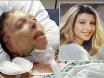 Bằng chứng bất ngờ của cô gái dù đã chết vì bị thiêu sống vẫn khiến hung thủ vào tù