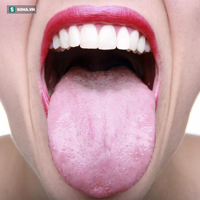 Có nên vệ sinh lưỡi mỗi lần đánh răng để ngừa hôi miệng: Nha sĩ trả lời rất thuyết phục-1