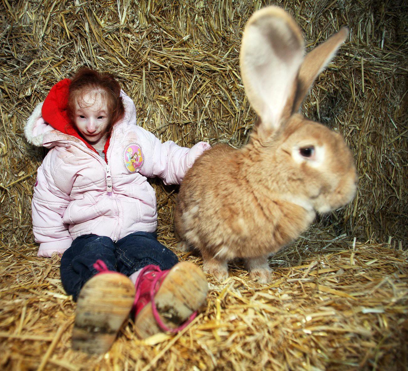 Cuộc đời của cô bé nhỏ nhất thế giới: Bác sĩ nói rằng em chỉ sống được 1 năm, nhưng nghị lực sống đã chiến thắng tất cả-2