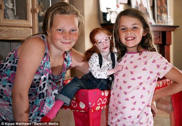 Cuộc đời của cô bé nhỏ nhất thế giới: Bác sĩ nói rằng em chỉ sống được 1 năm, nhưng nghị lực sống đã chiến thắng tất cả-3