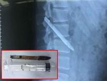 Lưỡi dao bị bỏ quên trong lưng chiến sỹ công an suốt 11 năm
