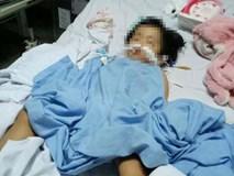 Bé 20 tháng tuổi rạn hộp sọ, hôn mê sâu, liệt nửa người sau 3 ngày đến trường mầm non