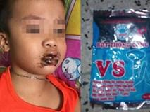 Bé trai 1 tuổi ăn nhầm bột thông bồn cầu