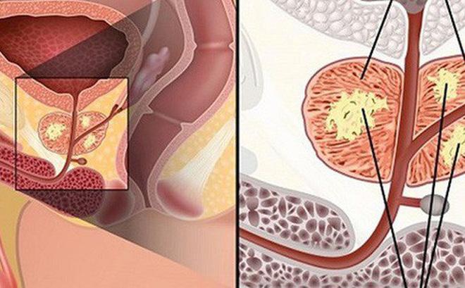 Yếu tố làm tăng nguy cơ mắc ung thư tuyến tiền liệt mà nam giới cần biết-3