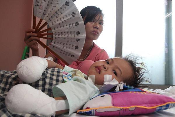 """Mẹ bé gái tay chân hoại tử sau cơn sốt ban đêm: Thế là con mất hết tay, chân rồi""""-3"""