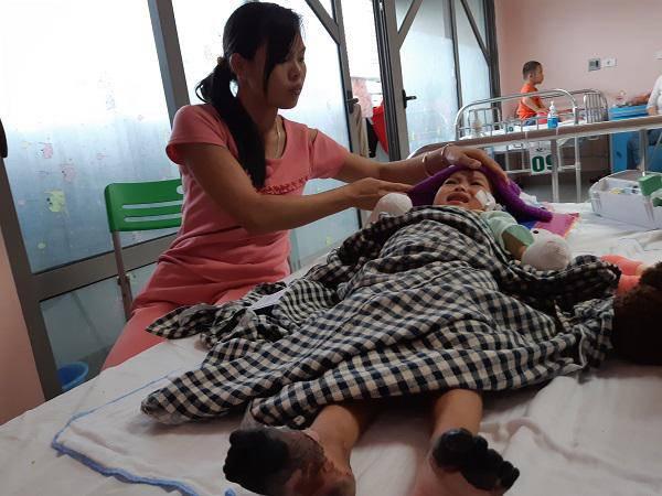 """Mẹ bé gái tay chân hoại tử sau cơn sốt ban đêm: Thế là con mất hết tay, chân rồi""""-2"""