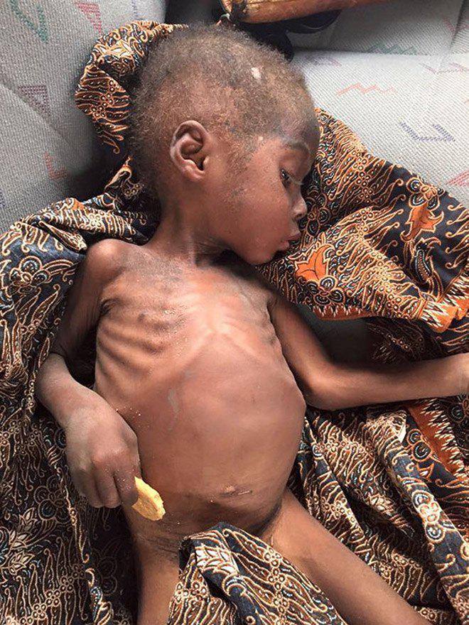 Hình ảnh mới nhất của cậu bé 2 tuổi từng bị bỏ đói gây chấn động thế giới-4