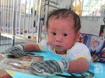 Người đầy vẩy ngứa như da trăn, bé gái 14 tháng tuổi bị bố mẹ bỏ rơi nên không có tiền chữa trị