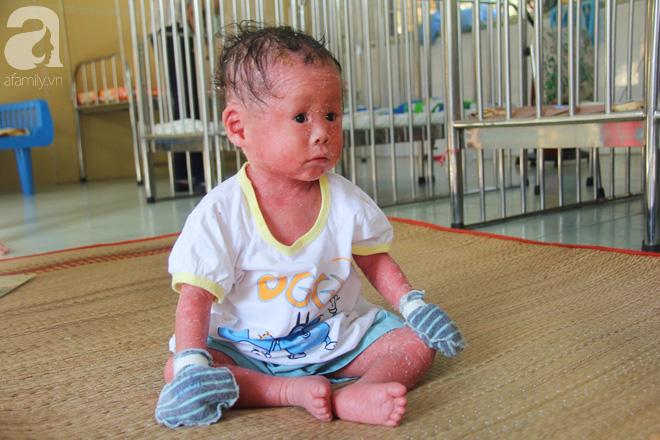Người đầy vẩy ngứa như da trăn, bé gái 14 tháng tuổi bị bố mẹ bỏ rơi nên không có tiền chữa trị-11
