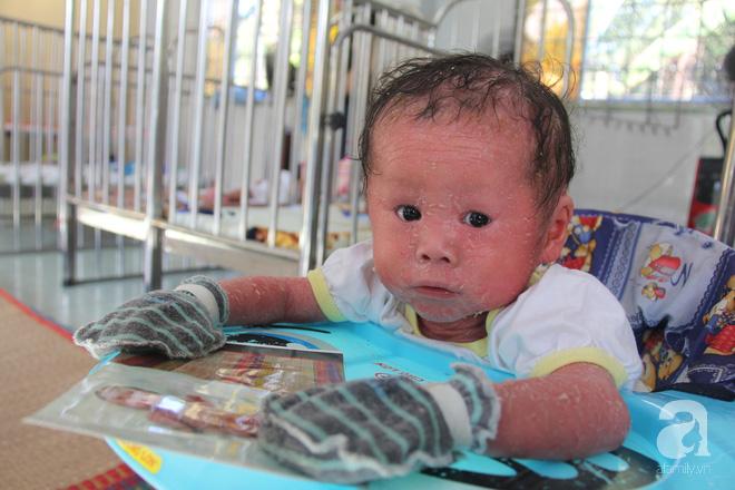 Người đầy vẩy ngứa như da trăn, bé gái 14 tháng tuổi bị bố mẹ bỏ rơi nên không có tiền chữa trị-3