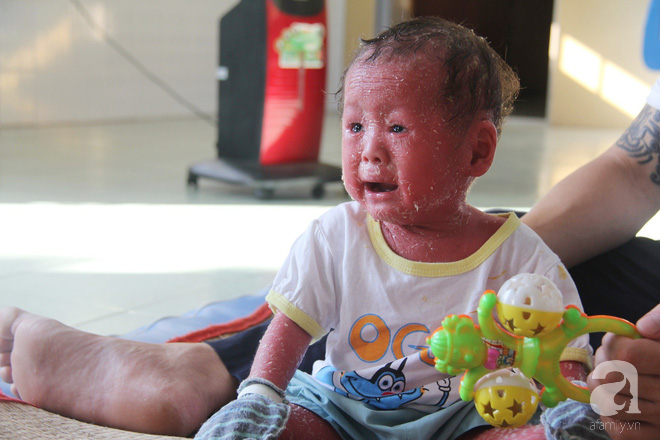 Người đầy vẩy ngứa như da trăn, bé gái 14 tháng tuổi bị bố mẹ bỏ rơi nên không có tiền chữa trị-6