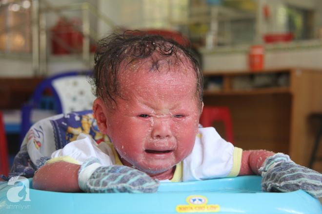 Người đầy vẩy ngứa như da trăn, bé gái 14 tháng tuổi bị bố mẹ bỏ rơi nên không có tiền chữa trị-1