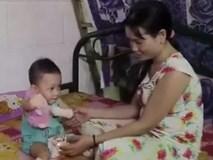 Xót xa trước cảnh em bé bị cắt cụt hết chân, tay