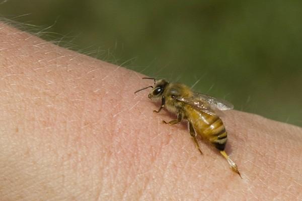 Đừng coi thường khi bị côn trùng đốt: Trang bị kỹ năng để xử lý đúng cách, tránh biến chứng đe dọa tính mạng-1