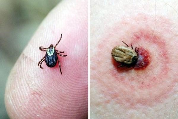 Đừng coi thường khi bị côn trùng đốt: Trang bị kỹ năng để xử lý đúng cách, tránh biến chứng đe dọa tính mạng-2