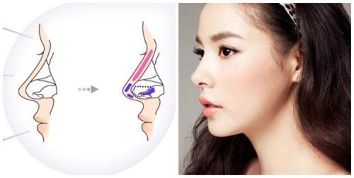 Phẫu thuật nâng mũi có ảnh hưởng gì không, đọc bài viết dưới đây bạn sẽ rõ!-2
