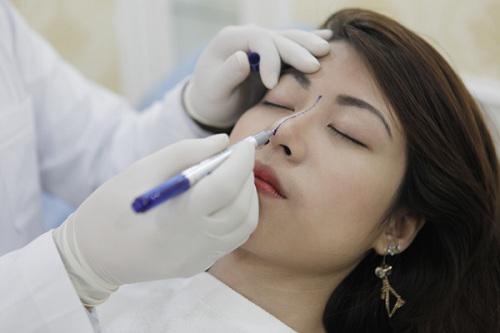 Phẫu thuật nâng mũi có ảnh hưởng gì không, đọc bài viết dưới đây bạn sẽ rõ!-3