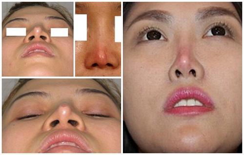 Phẫu thuật nâng mũi có ảnh hưởng gì không, đọc bài viết dưới đây bạn sẽ rõ!-5