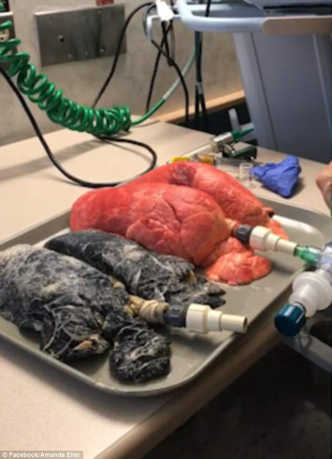 Hình ảnh phổi của một người khỏe mạnh và người hút thuốc lá suốt 20 năm khiến nhiều người hãi hùng-2