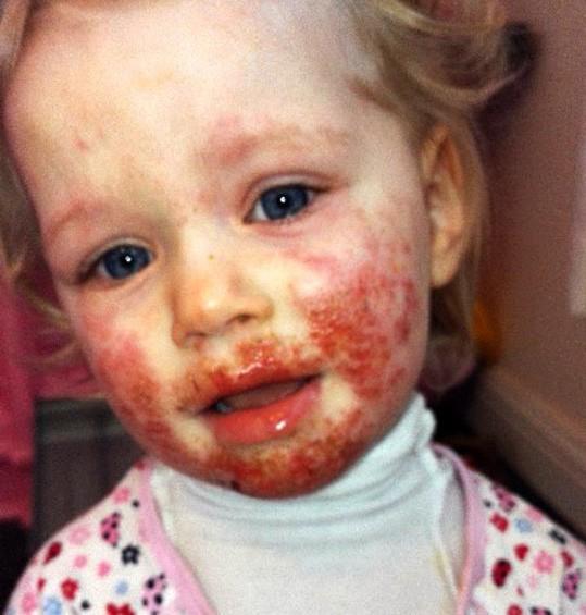 Bé gái bị lây bệnh tình dục vì nụ hôn của cha-2