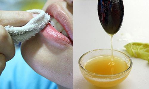 Với 5 ngàn đồng, chị em có ngay cách dưỡng môi bằng mật ong khỏi cần bôi son-5