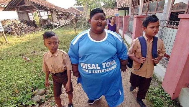 Cậu bé béo nhất thế giới giảm 83 kg, có thể đến trường đi học-5