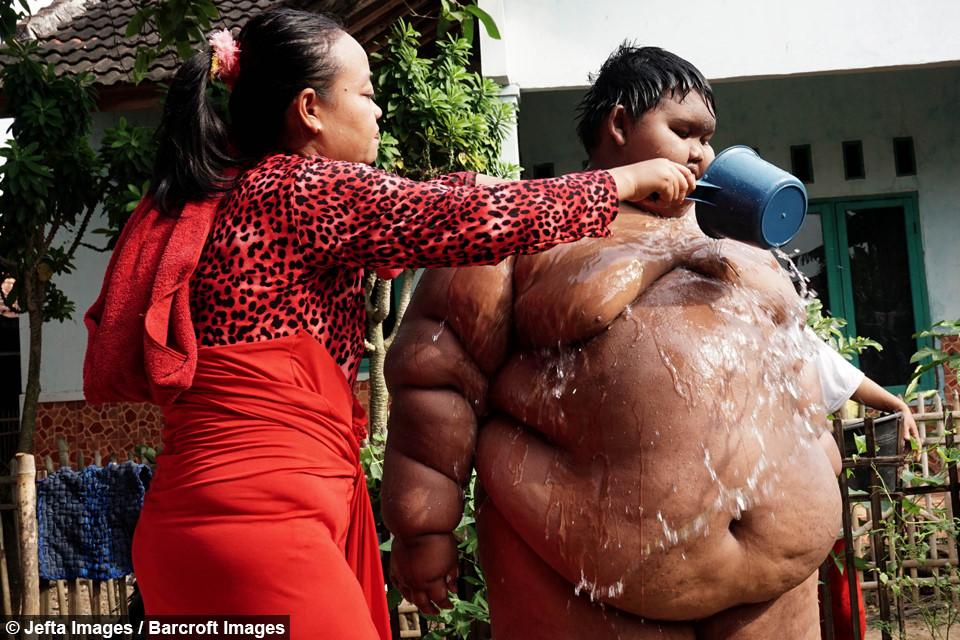 Cậu bé béo nhất thế giới giảm 83 kg, có thể đến trường đi học-4