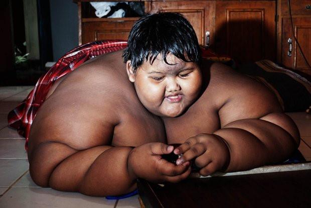 Cậu bé béo nhất thế giới giảm 83 kg, có thể đến trường đi học-3