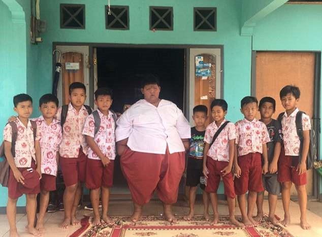 Cậu bé béo nhất thế giới giảm 83 kg, có thể đến trường đi học-6