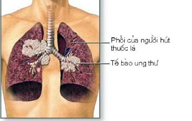 Ung thư phổi là bệnh có tiên lượng xấu: Chuyên gia chỉ rõ những dấu hiệu của bệnh-1