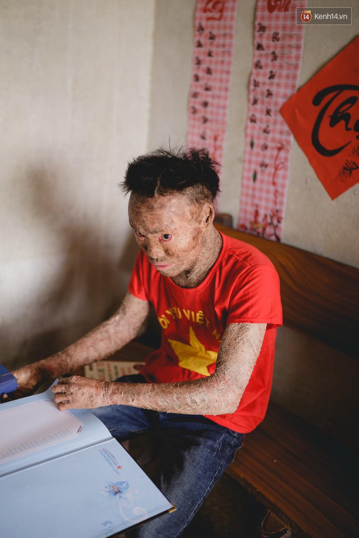 Chàng trai người cá lạc quan ở Hà Nội: Nhìn thấy bộ dạng của mình, nhiều người hỏi sao không chết đi, sống để làm gì?-1