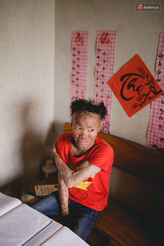 Chàng trai người cá lạc quan ở Hà Nội: Nhìn thấy bộ dạng của mình, nhiều người hỏi sao không chết đi, sống để làm gì?-12
