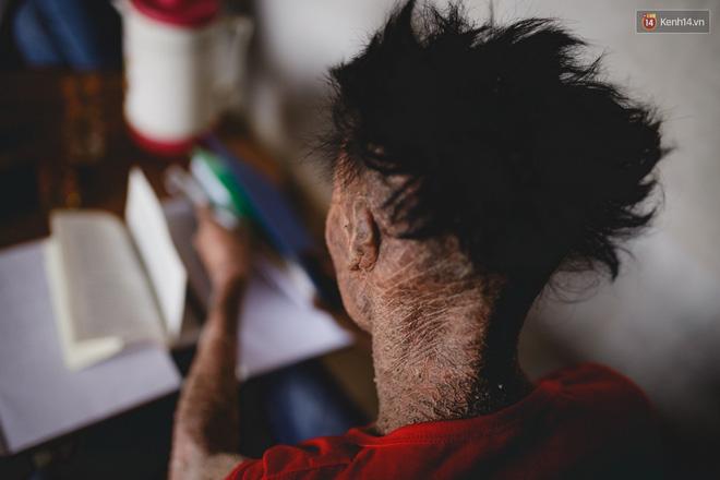 Chàng trai người cá lạc quan ở Hà Nội: Nhìn thấy bộ dạng của mình, nhiều người hỏi sao không chết đi, sống để làm gì?-9