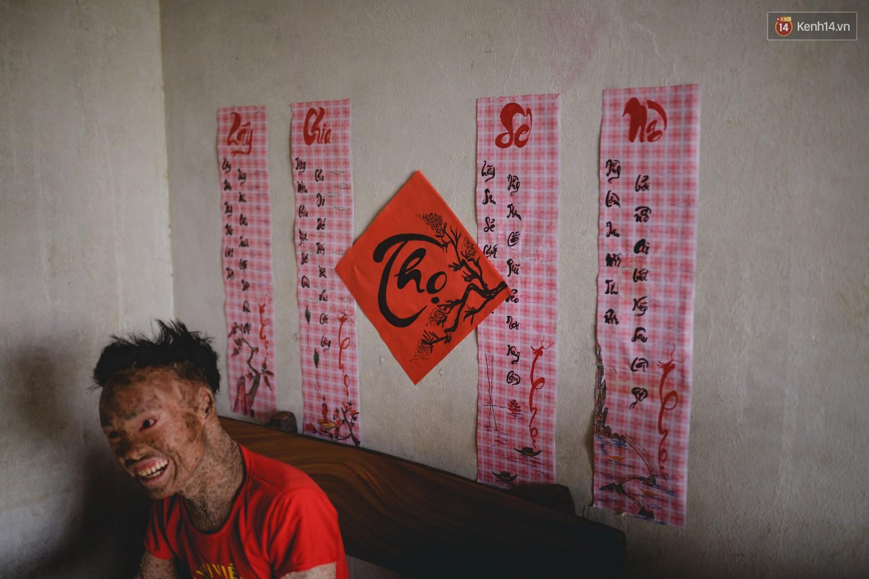 Chàng trai người cá lạc quan ở Hà Nội: Nhìn thấy bộ dạng của mình, nhiều người hỏi sao không chết đi, sống để làm gì?-10