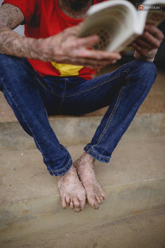Chàng trai người cá lạc quan ở Hà Nội: Nhìn thấy bộ dạng của mình, nhiều người hỏi sao không chết đi, sống để làm gì?-7