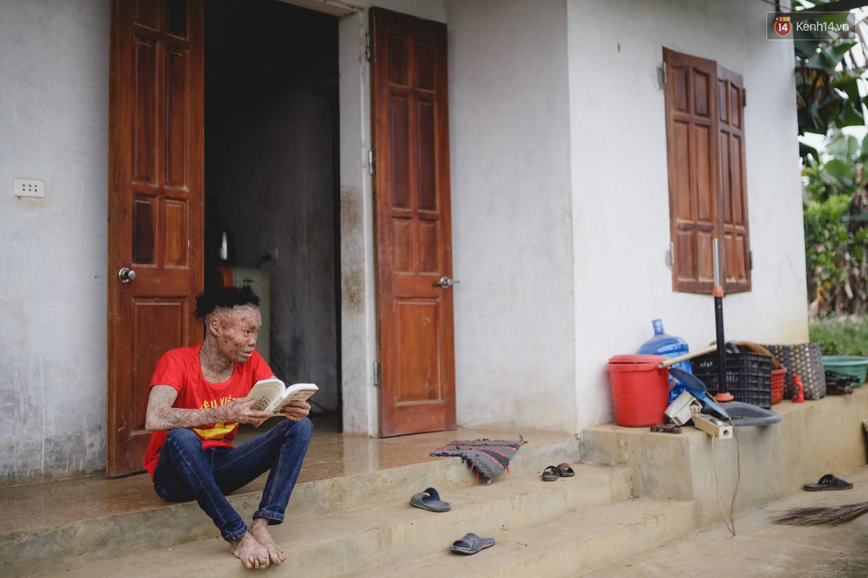 Chàng trai người cá lạc quan ở Hà Nội: Nhìn thấy bộ dạng của mình, nhiều người hỏi sao không chết đi, sống để làm gì?-2