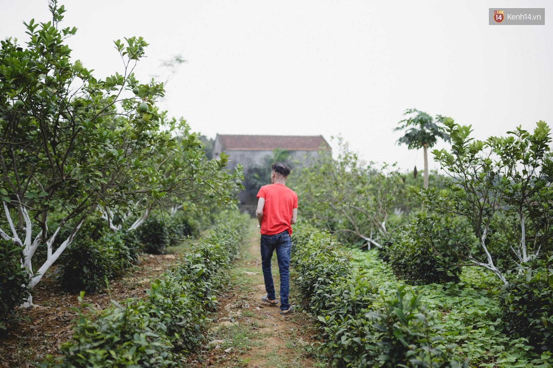 Chàng trai người cá lạc quan ở Hà Nội: Nhìn thấy bộ dạng của mình, nhiều người hỏi sao không chết đi, sống để làm gì?-11