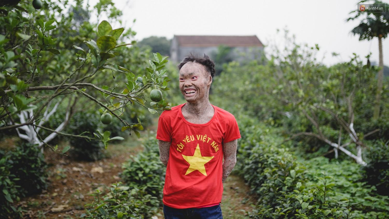 Chàng trai người cá lạc quan ở Hà Nội: Nhìn thấy bộ dạng của mình, nhiều người hỏi sao không chết đi, sống để làm gì?-15