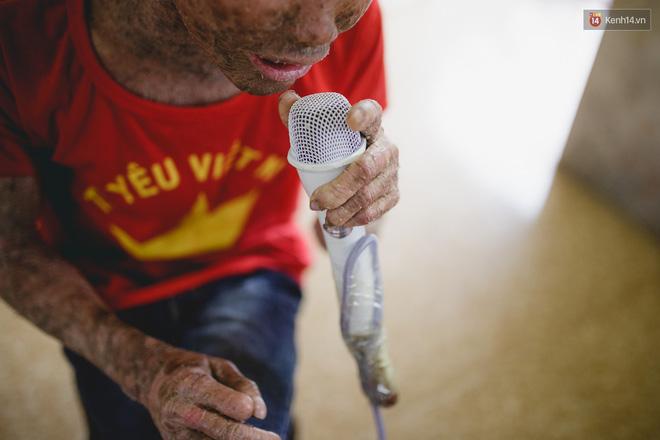 Chàng trai người cá lạc quan ở Hà Nội: Nhìn thấy bộ dạng của mình, nhiều người hỏi sao không chết đi, sống để làm gì?-4