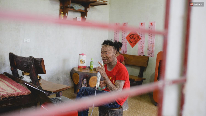 Chàng trai người cá lạc quan ở Hà Nội: Nhìn thấy bộ dạng của mình, nhiều người hỏi sao không chết đi, sống để làm gì?-3
