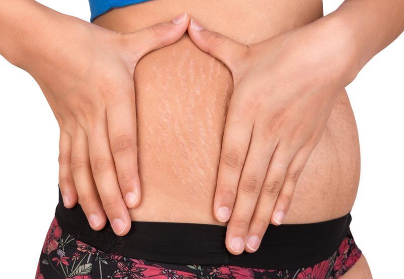 Mịn bụng tức thì nhờ 8 cách trị rạn da cho nàng tự tin vận bikini gợi cảm-1